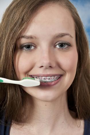 Lehetsz szép fogszabályozóval is!