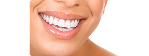 Fogszabályozás a szép és egészséges fogakért